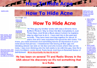 how to hide acne-how to hide acneThumbnail